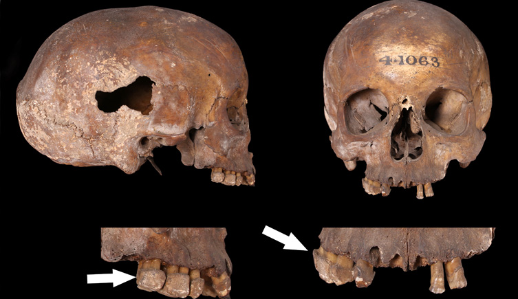 Roman skull with calculus build-up on teeth