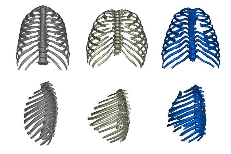 ribcage-comparison-humans-homo-erectus-two-column.jpg.thumb.768.768.jpg