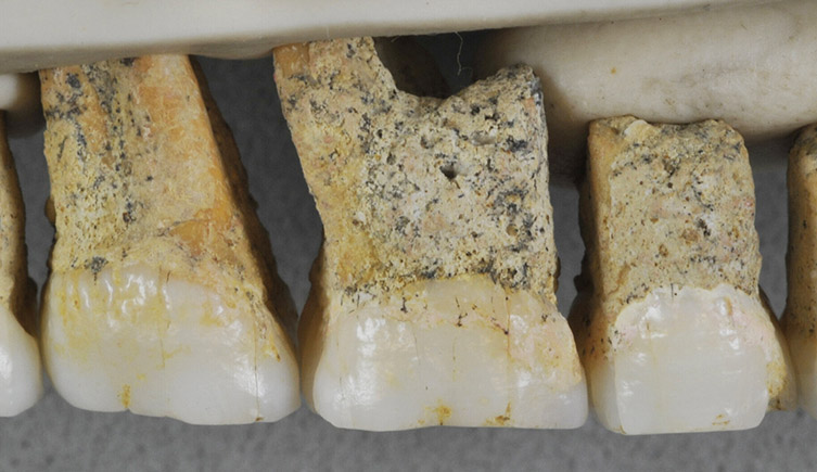 The teeth of Homo luzonensis