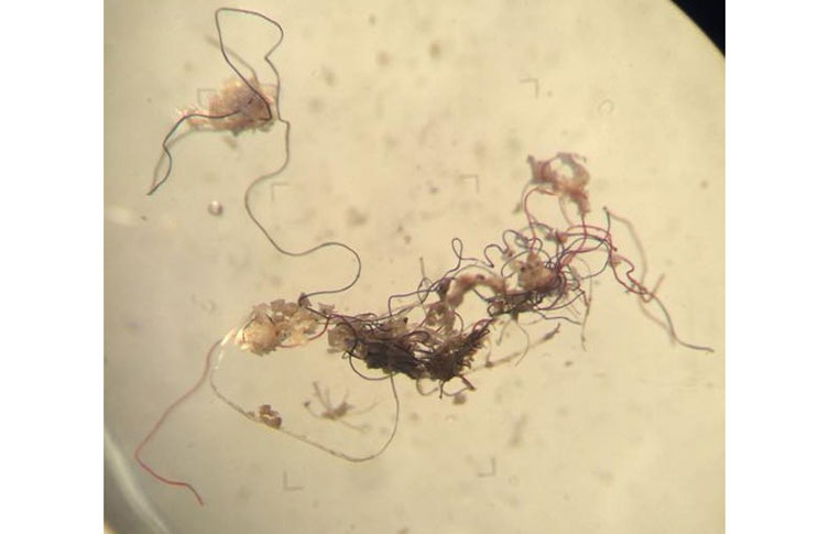 seal-microplastics-tangled-fibres-two-column