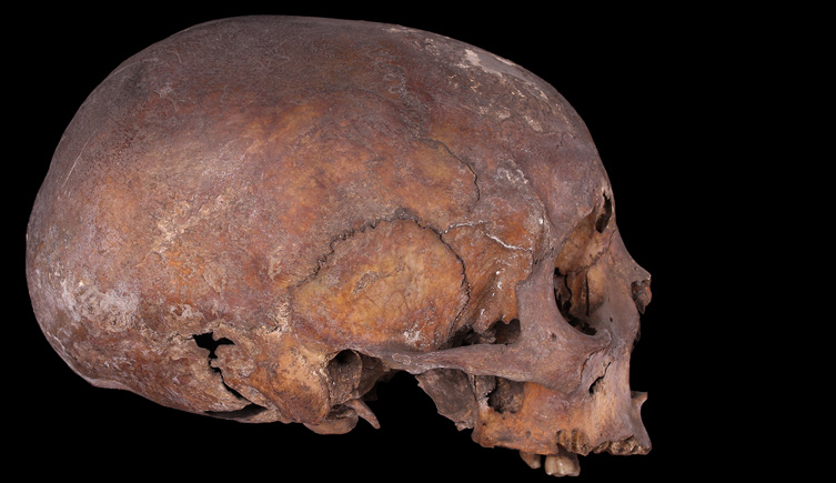 Female cranium from St Martin-'s in- the- Fields