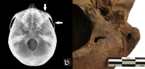 Left: Digital radiograph showing a healed skull fracture. Right: Skull showing sharp-force injuries and fractures inflicted around the time of death.