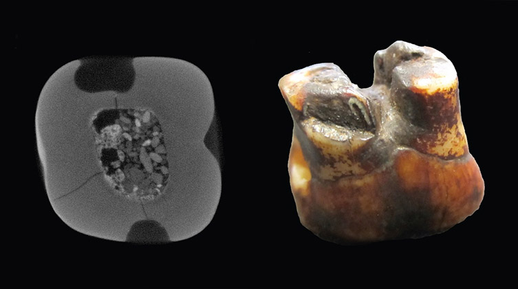 CT scan of the Piltdown teeth