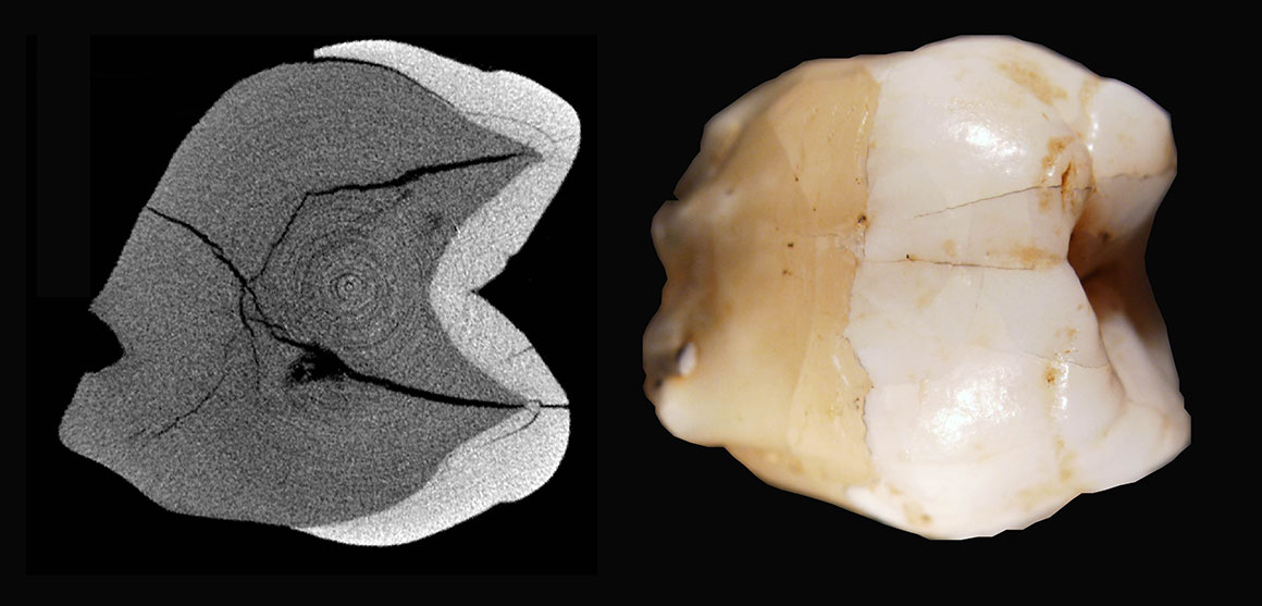 Images of a fossil tooth and a scan through the tooth