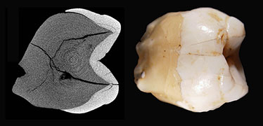 Fossil teeth suggest earlier entry of modern humans into SE Asia