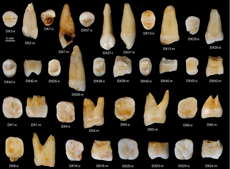 A larger sample of the Daoxian teeth