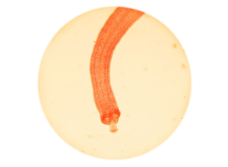 Microscopic view of a dwarf tapeworm