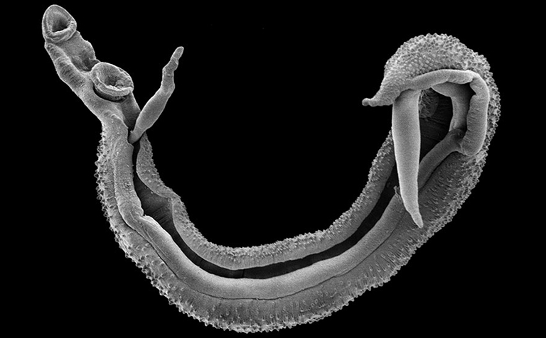 Male/female pair of adult schistosomes
