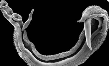 parasitic-worm_30542_1.jpg