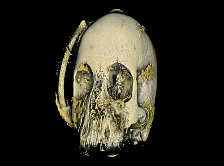 mineralied-skull-scan_700.jpg