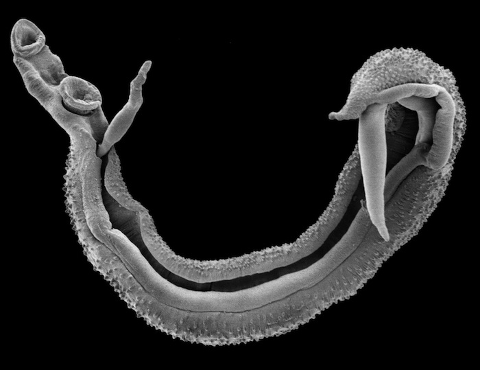 NaturePlus: Super-flies and parasites: The blood fluke story