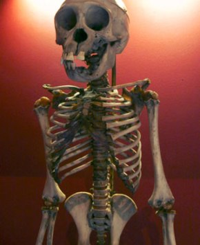 Tyson's chimp, a skeleton of a young chimpanzee.