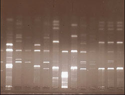 DNA banding patterns