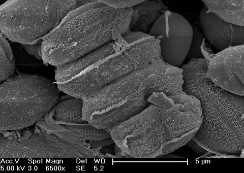 SEM of Desmodesmus colony