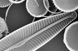 Scanning electron microscope image of diatoms showing the ornate silica shell