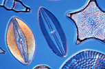 Slide of a group of fossil diatoms viewed using differential interference contrast