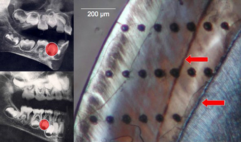 Image of tooth enamel and an X-ray of the jaw showing area imaged