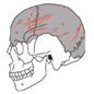 Cutmarks on cannibalised human skull.