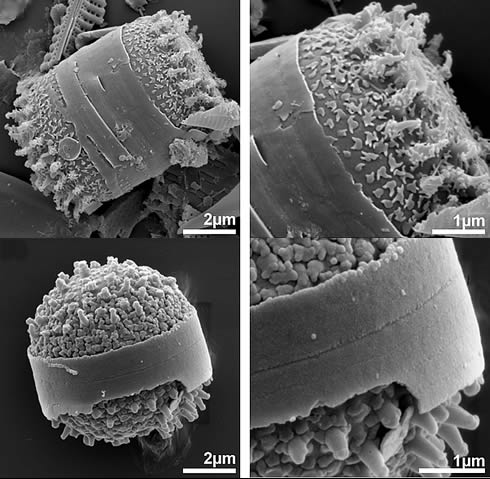 SEM images of the new genus and species of the diatom Clipeoparvus anatolicus fossils on top and liv