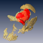 CT scan showing Neanderthal skull fragment