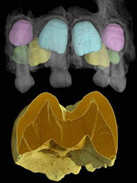 Synchrotron image of the upper jaw (maxilla) of a Neanderthal child showing the permanent teeth insi