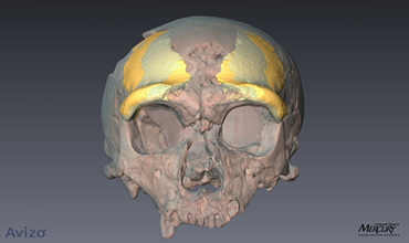 CT scan showing skull fragment from Zeeland Ridges mirrored and superimposed on a Neanderthal skull