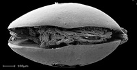 Electron micrograph of ostracod, Harbinia micropapillosa, shows soft body parts inside.