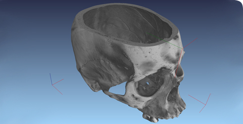 Micro CT scan of a human skull