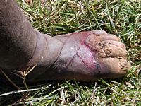 Symptoms of mild podoconiosis.