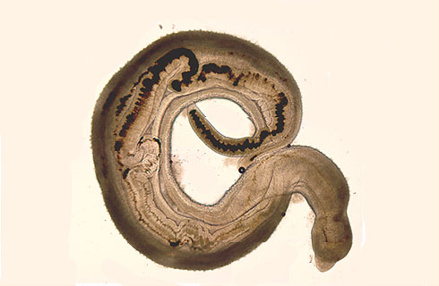 Paired adult male and female Schistosoma haematobium worms