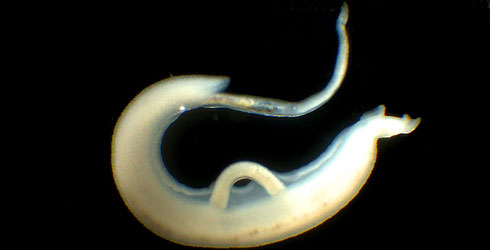 Schistosoma mansoni male/female pair