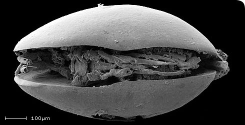 SEM image showing the carapace and external features of the appendages of H. papillosa