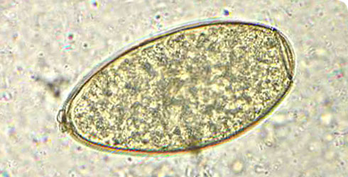 An egg of Fasciola hepatica