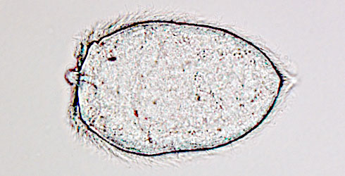 The miracidium stage of Schistosoma mansoni