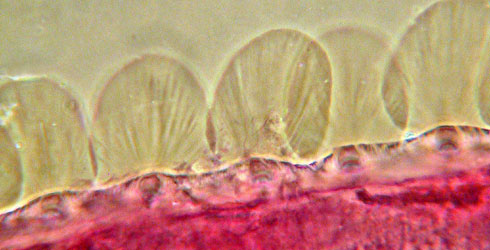 Photomicrograph of modified marginal setae