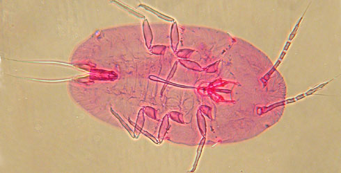 Phase-contrast photomicrograph of crawler
