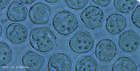 Each spore contains two sporoplasms (spores approx. 18µm in diameter)